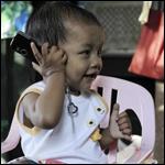У девочки из Мьянмы целых 26 пальцев