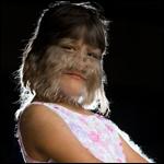 Девочка-волк попала в книгу рекордов Гинеса (+фото)
