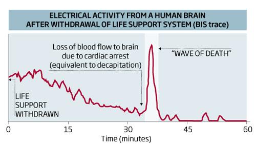 На энцефалограммах умерших фиксируются всплески электрической активности