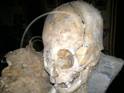 Ренато Давила Рикельме (Renato Dávila Riquelme) выставил в  частном музее Ritos Andinos останки очень необычной мумии