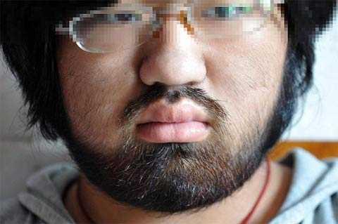 У девушки выросла борода