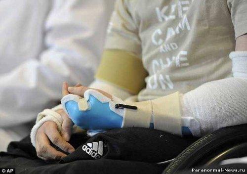 Солдату без конечностей пересадили руки