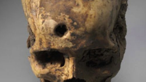 Чудеса хирургии каменного века