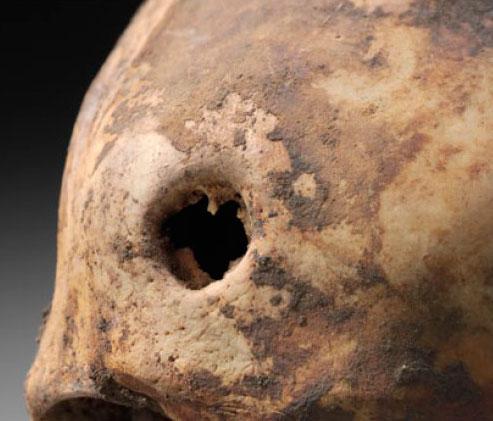 """""""Простреленные черепа"""" неандертальцев"""