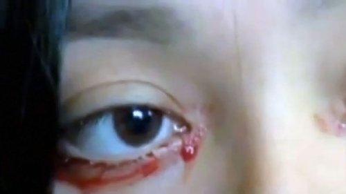 Кровавые слезы у женщины из Чили обескуражили врачей