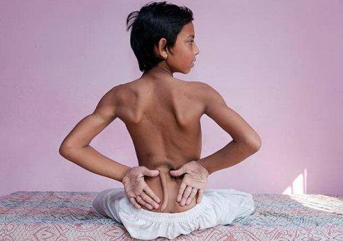 В Индии мальчик с хвостом признан воплощением божества