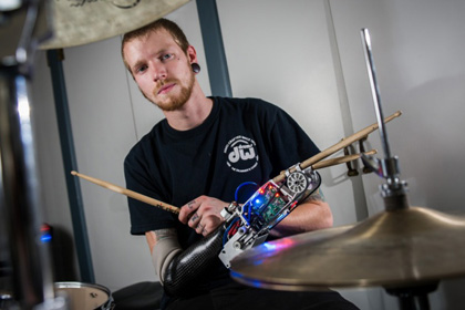 Ударнику-ампутанту изготовили роботизированный протез
