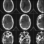 Впервые открыт механизм восстановления нервных клеток после инсульта