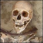 Анализ эмали зубов объяснил происхождение «вампиров» XVII века