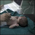 Пересадка матки от бабушки младенца впервые привела к успешным родам