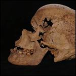 Ученые узнали о древнейшем в истории человечества случае рака груди