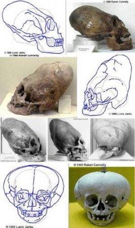 Странные черепа.